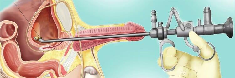 Citoscopia