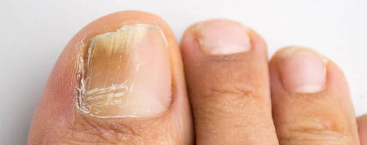 imagen de hongos en las uñas delos pies