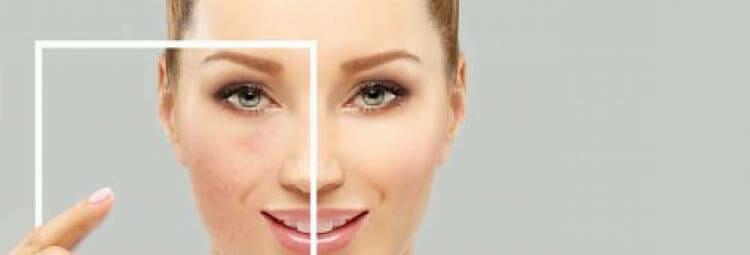 Beneficios del jabón de azufre para las manchas en la piel