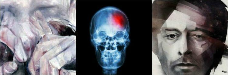 Tratamiento de la anosognosia