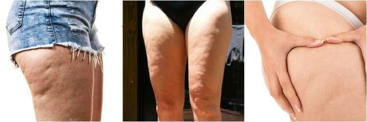 celulitis dedo tratamiento
