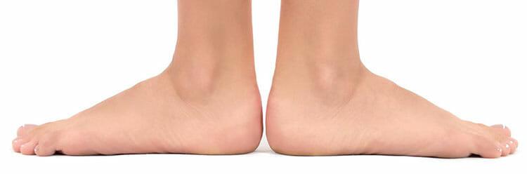 Causas del pie plano
