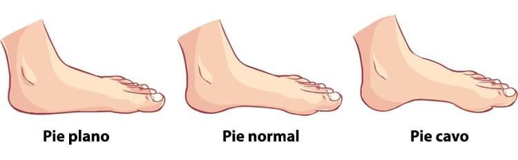 Diagnóstico de pies planos