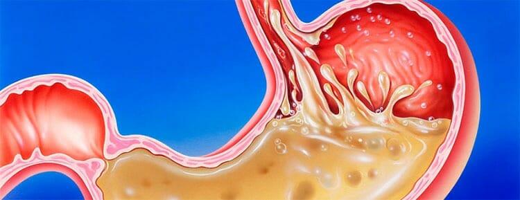 Reflujo gastroesofágico