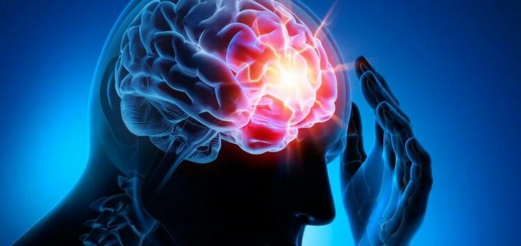 Síntomas de la cefalea