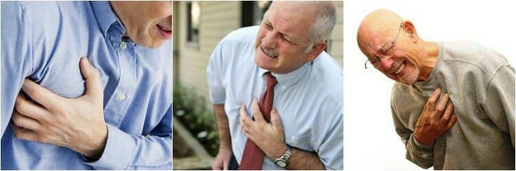 Síntomas del infarto de miocardio