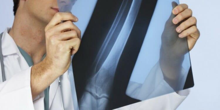 Sarcoma tejidos oseos