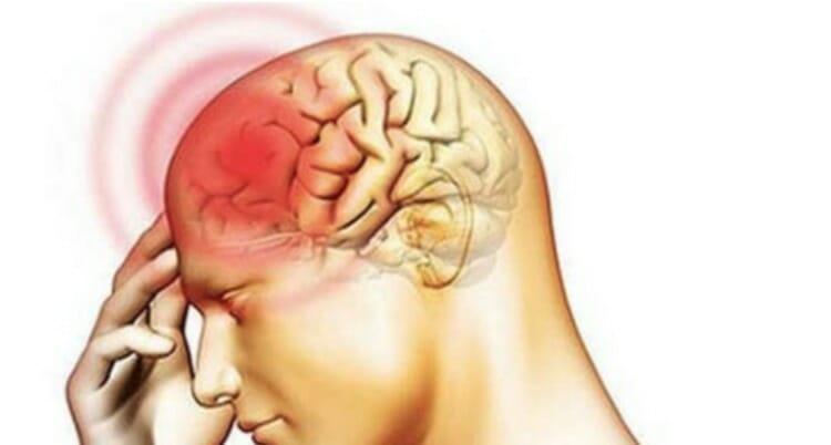 Síntomas de la encefalitis