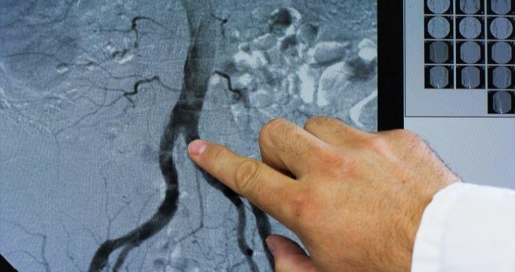 Complicaciones de la urografía