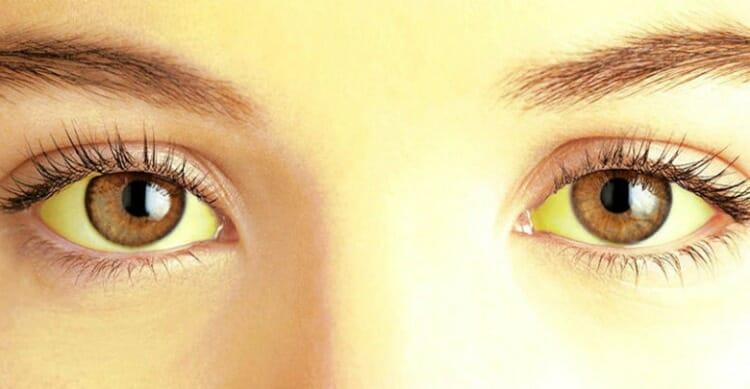 Síntomas de la fiebre amarilla