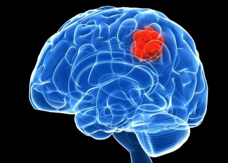 Tipos de tumores en el cerebro