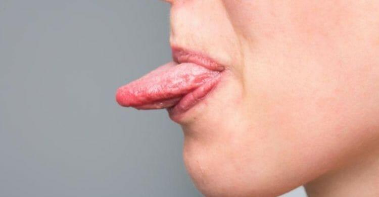 ¿Por qué aparecen las llagas en la lengua?