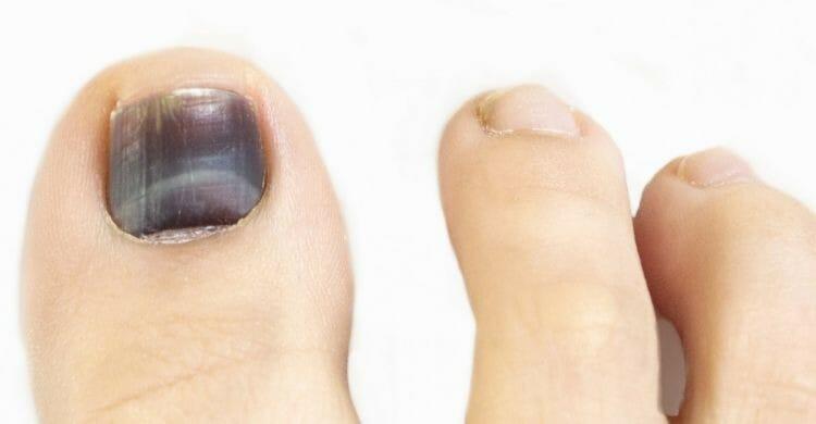 Tratamiento para la uña negra
