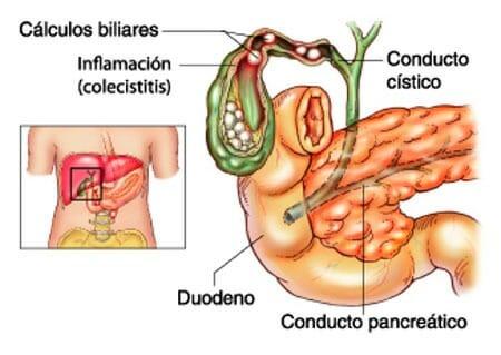 causas Barro biliar
