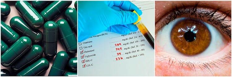 Efectos secundarios de la lisina