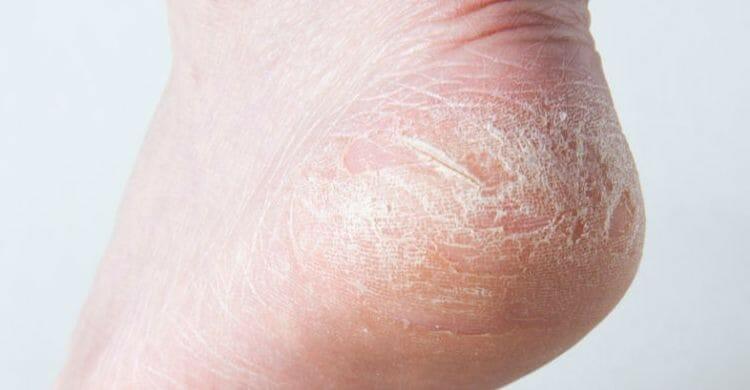 Síntomas de los talones agrietados