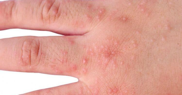 Cómo evitar la piel atópica