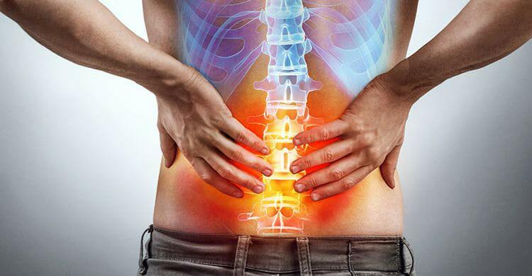 ¿Cómo prevenir la espondilitis anquilosante?