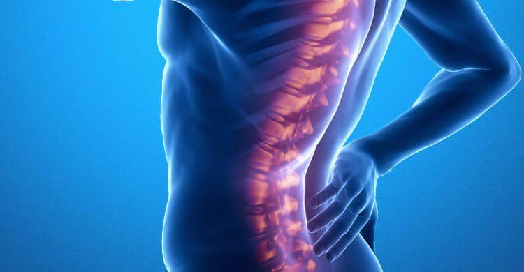 Espondilitis anquilosante: síntomas
