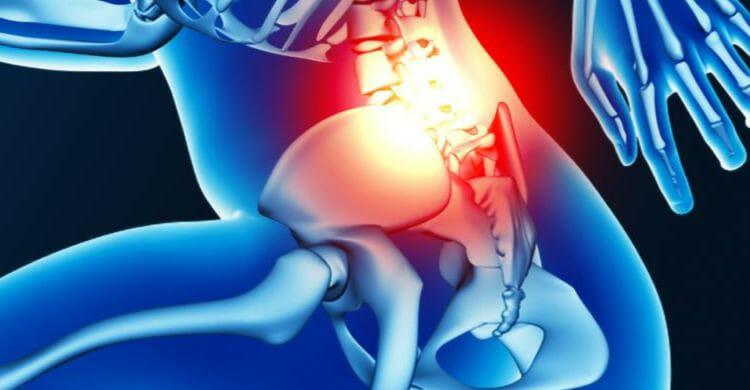 Tratamiento de la espondilitis anquilosante