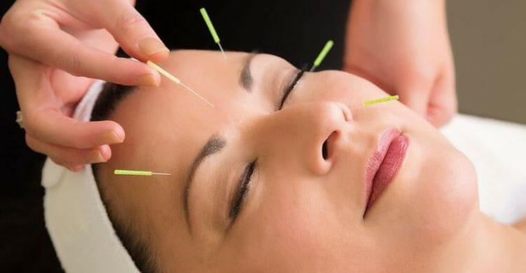 Acupuntura facial lo último para eliminar las arrugas