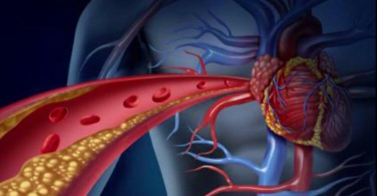 Arteriosclerosis: síntomas