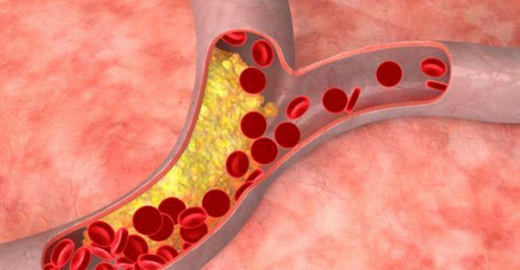 Arteriosclerosis: tratamiento