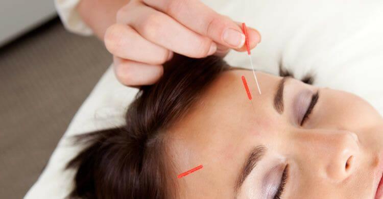 Beneficios de la acupuntura facial como tratamiento rejuvenecedor