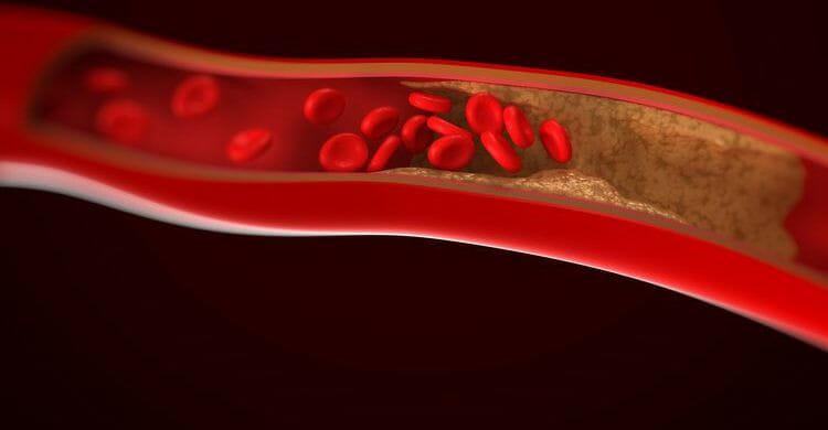¿Cómo prevenir la arteriosclerosis?
