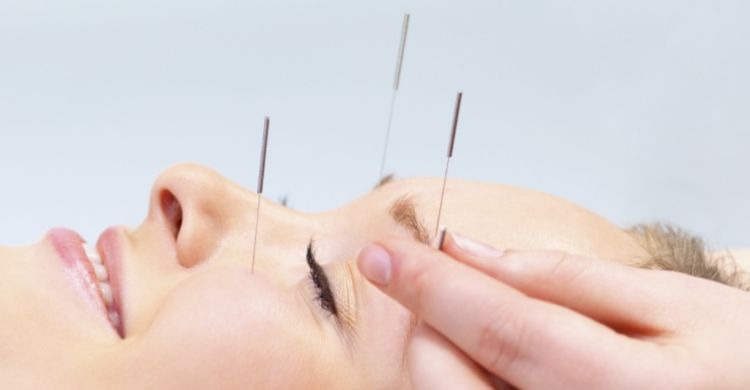 ¿Cómo son los resultados de la acupuntura facial?