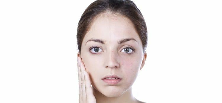 Esclerodermia o fenómeno Raynaud