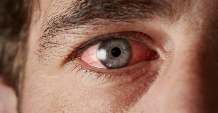 Sarcoidosis ocular