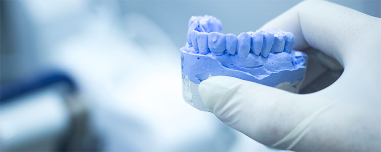 La férula de descarga se realiza a partir de un molde exacto de la boca