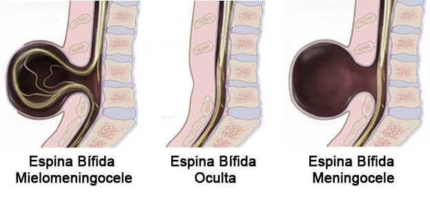Tipos de espina bífida