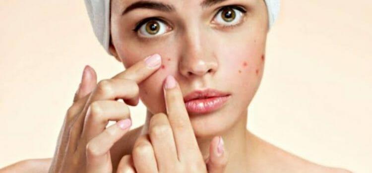 Vitacilina para tratar el acné