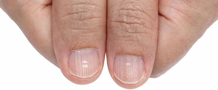 Causas de manchas blancas en las uñas