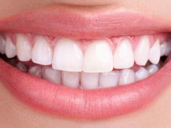 Cómo blanquear los dientes en casa