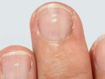 Manchas en las uñas