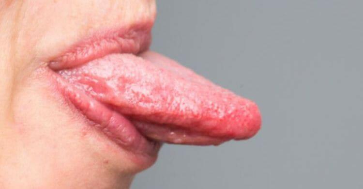 Por qué salen los granos en la lengua