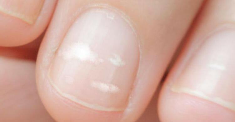 como quitar las manchas de las uñas de los pies