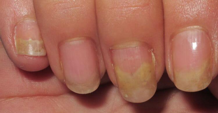 Cuáles son las causas de las uñas amarillas