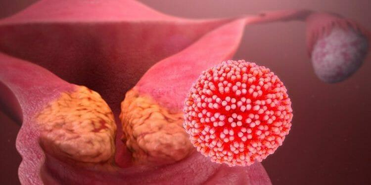 Síntomas VPH