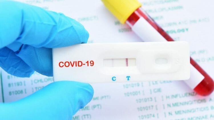 Diagnóstico Covid